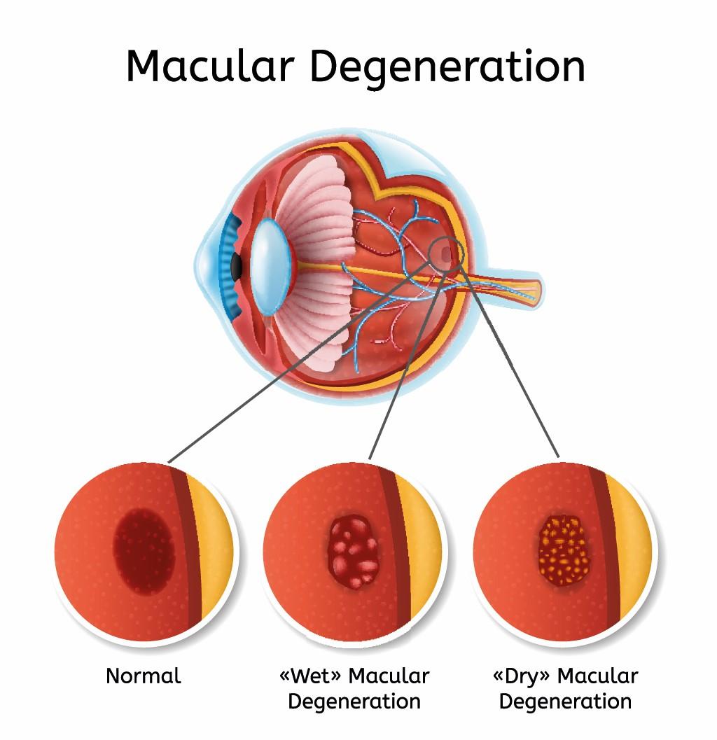 maculadegeneratie